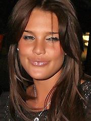 Danielle Lloyd collagen or friction burn