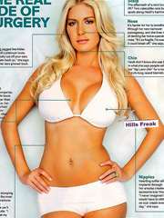 Heidi Montag plastic surgery scars exposed