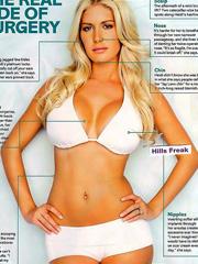 Heidi Montag plastic surgery scars exposed